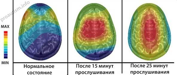 Изменения в мозге при прослушивании бинатуральных ритмов