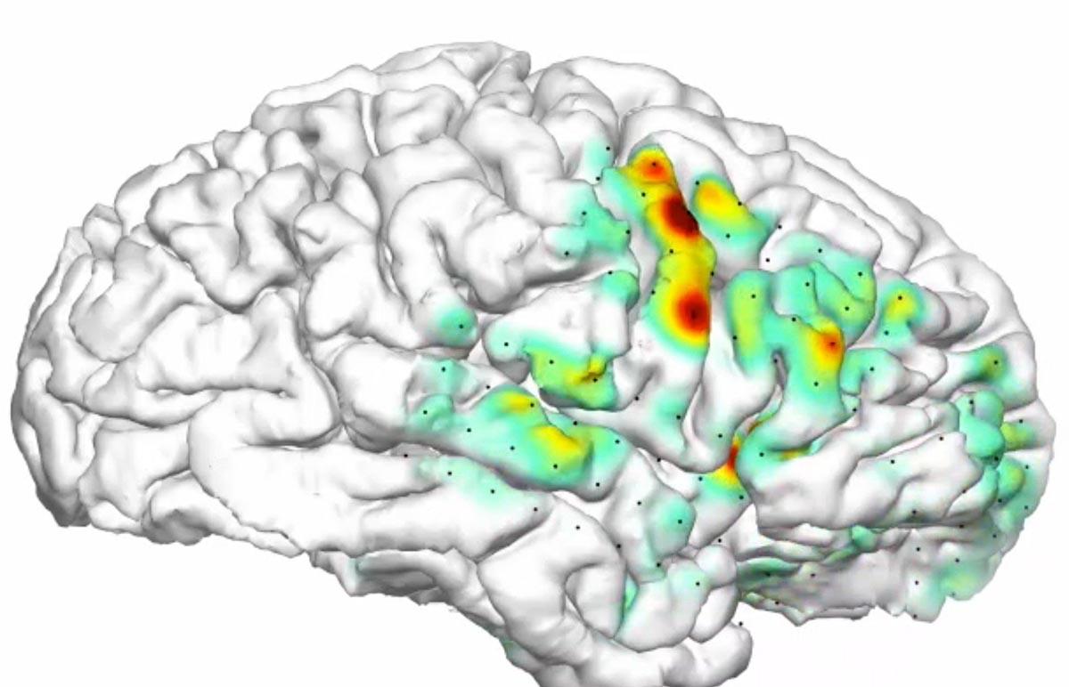 Трехмерная «тепловая карта» показывает, как приступы распространяются в головном мозге пациентов с эпилепсией